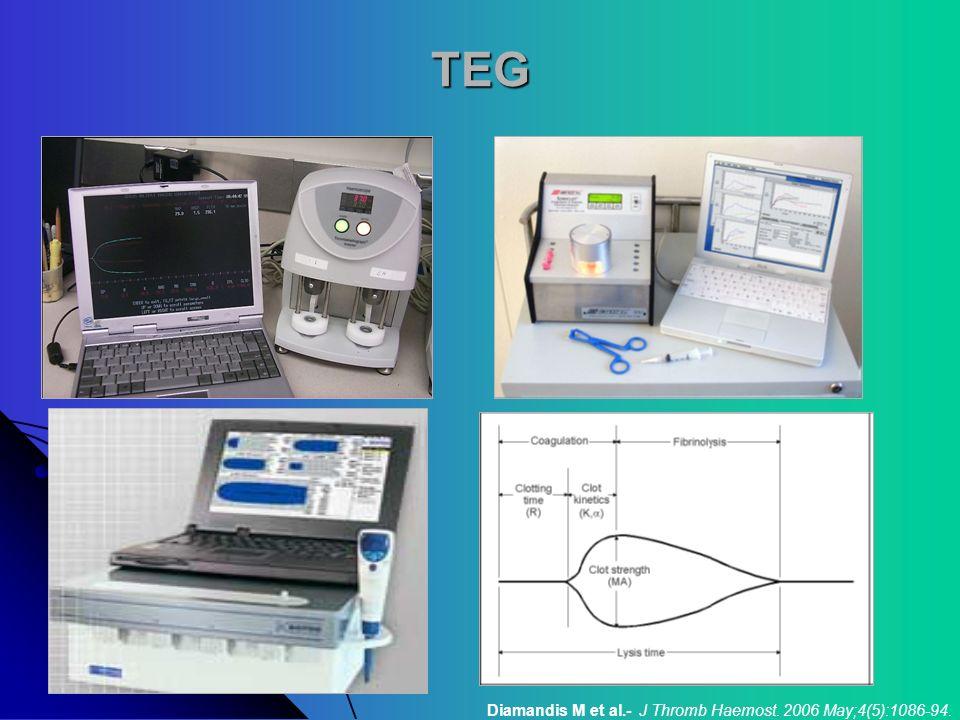 TEG Diamandis M et al.- J Thromb Haemost. 2006 May;4(5):1086-94.