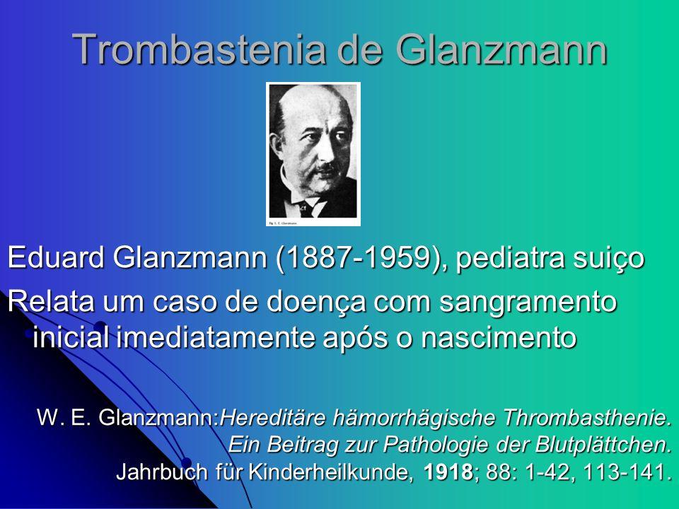 Trombastenia de Glanzmann Eduard Glanzmann (1887-1959), pediatra suiço Relata um caso de doença com sangramento inicial imediatamente após o nasciment