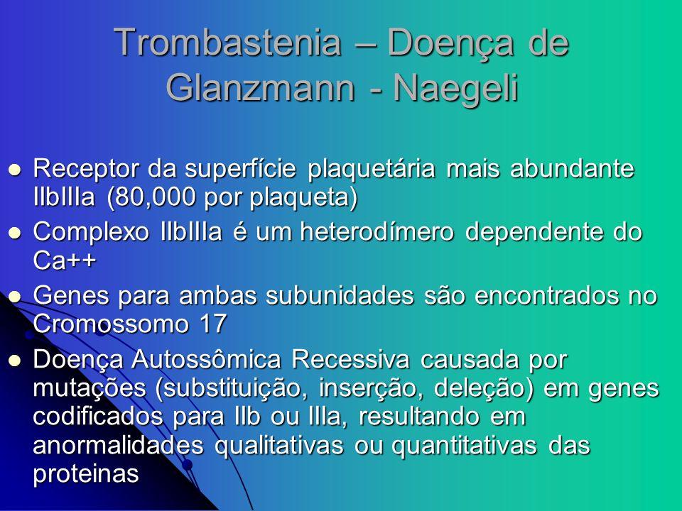 Trombastenia – Doença de Glanzmann - Naegeli Receptor da superfície plaquetária mais abundante IIbIIIa (80,000 por plaqueta) Receptor da superfície pl