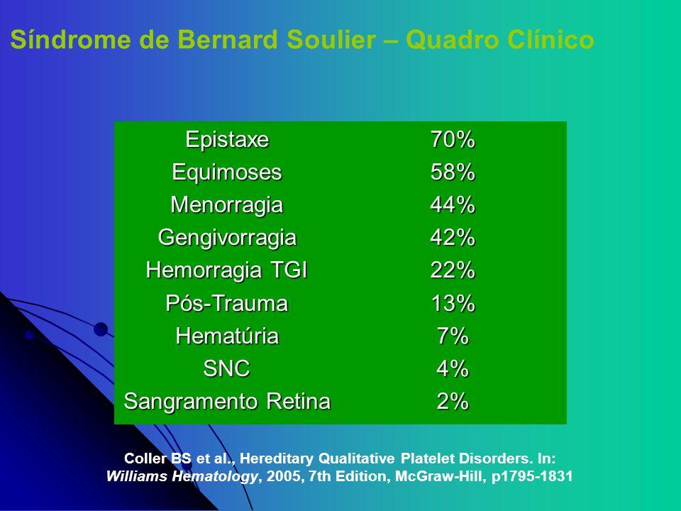 Síndrome de Bernard Soulier – Quadro Clínico EpistaxeEquimosesMenorragiaGengivorragia Hemorragia TGI Pós-TraumaHematúriaSNC Sangramento Retina 70%58%4
