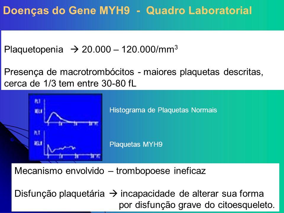 Plaquetopenia 20.000 – 120.000/mm 3 Presença de macrotrombócitos - maiores plaquetas descritas, cerca de 1/3 tem entre 30-80 fL Histograma de Plaqueta
