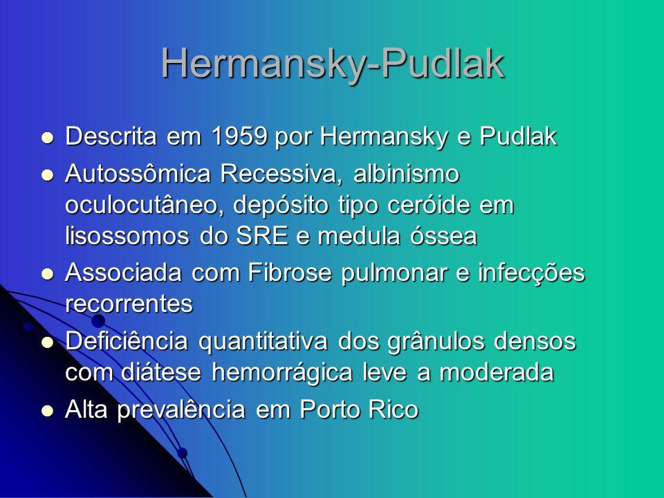 Hermansky-Pudlak Descrita em 1959 por Hermansky e Pudlak Descrita em 1959 por Hermansky e Pudlak Autossômica Recessiva, albinismo oculocutâneo, depósi