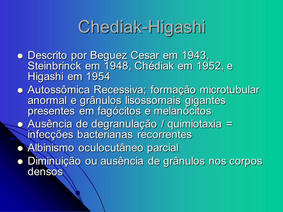 Chediak-Higashi Descrito por Beguez Cesar em 1943, Steinbrinck em 1948, Chédiak em 1952, e Higashi em 1954 Descrito por Beguez Cesar em 1943, Steinbri