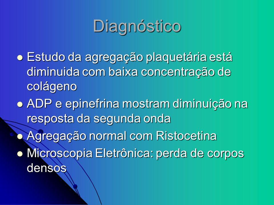 Diagnóstico Estudo da agregação plaquetária está diminuida com baixa concentração de colágeno Estudo da agregação plaquetária está diminuida com baixa