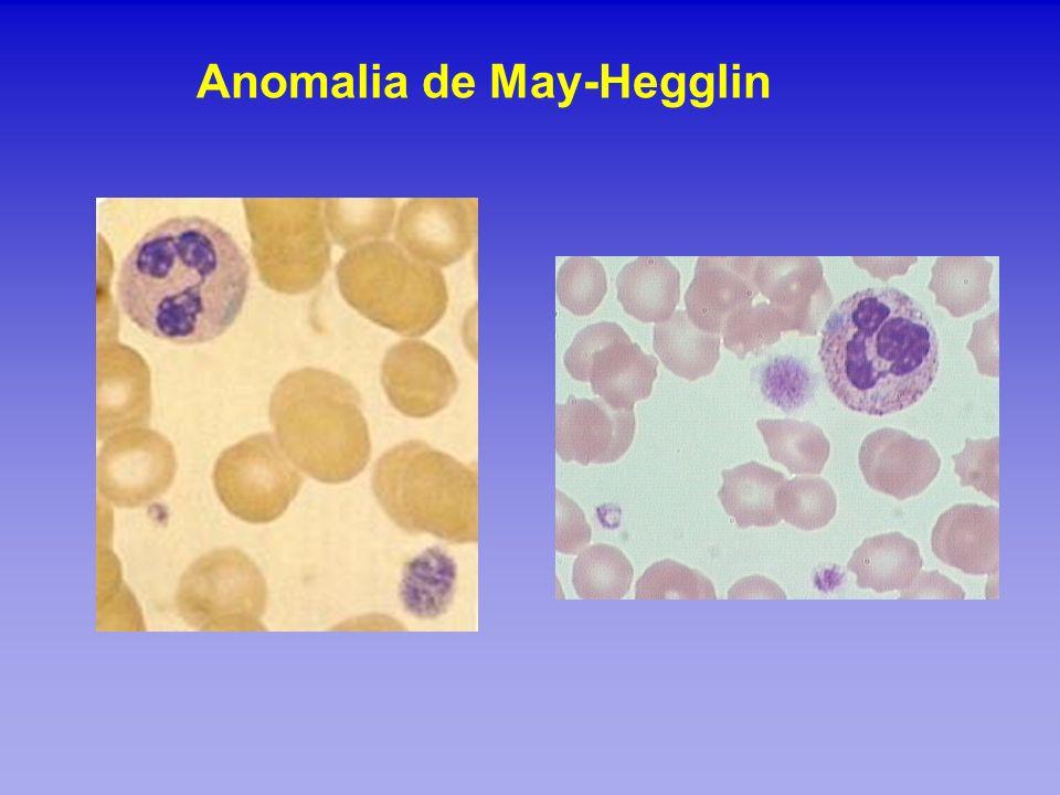 Anomalia de May-Hegglin