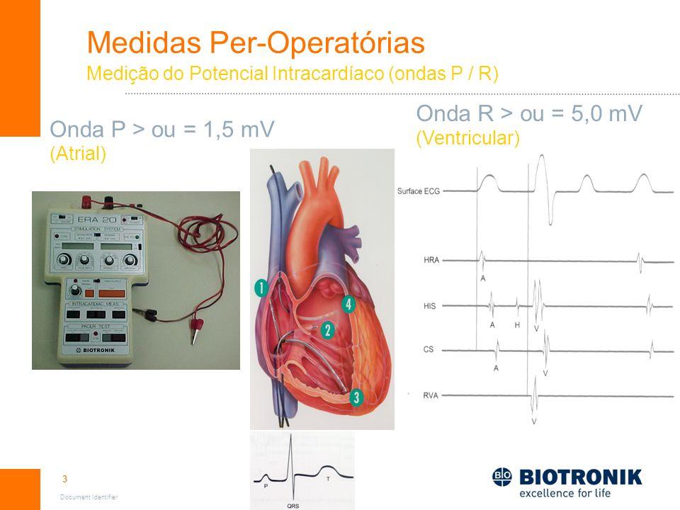 3 Document Identifier Medidas Per-Operatórias Medição do Potencial Intracardíaco (ondas P / R) Onda P > ou = 1,5 mV (Atrial) Onda R > ou = 5,0 mV (Ven