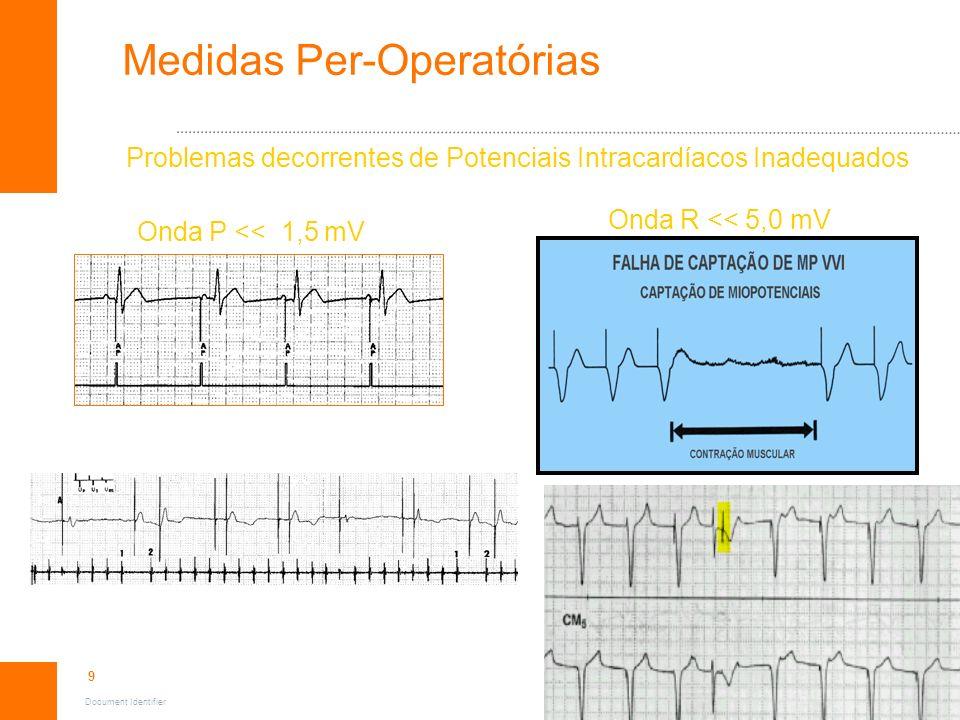 9 Document Identifier Medidas Per-Operatórias Problemas decorrentes de Potenciais Intracardíacos Inadequados Onda P << 1,5 mV Onda R << 5,0 mV