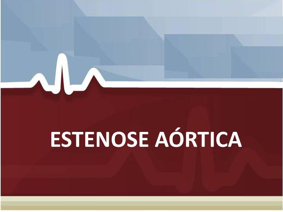 INSUFICIENCIA AÓRTICA CRÔNICA Dispnéia Dispnéia Angina Angina – Mortalidade >10% ao ano Insuficiência Cardíaca Insuficiência Cardíaca – Mortalidade >20% ao ano