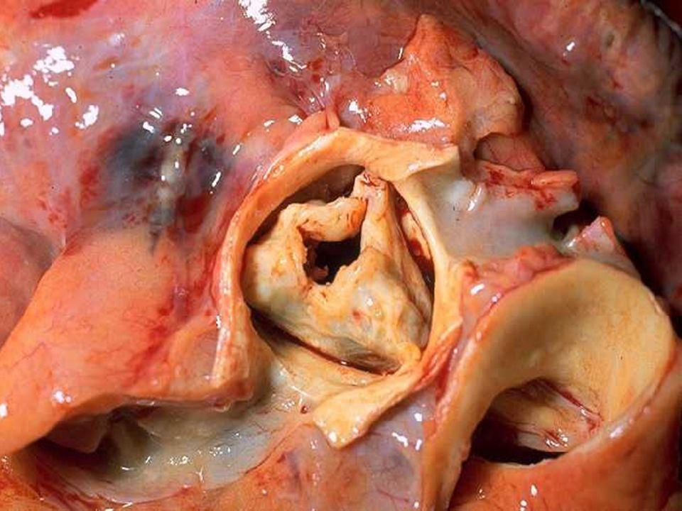 ESTENOSE AÓRTICA - Fisiopatologia Obstrução progressiva via saída VE Obstrução progressiva via saída VE – Hipertrofia ventricular – Aumento das pressões de enchimento – Disfunção diastólica