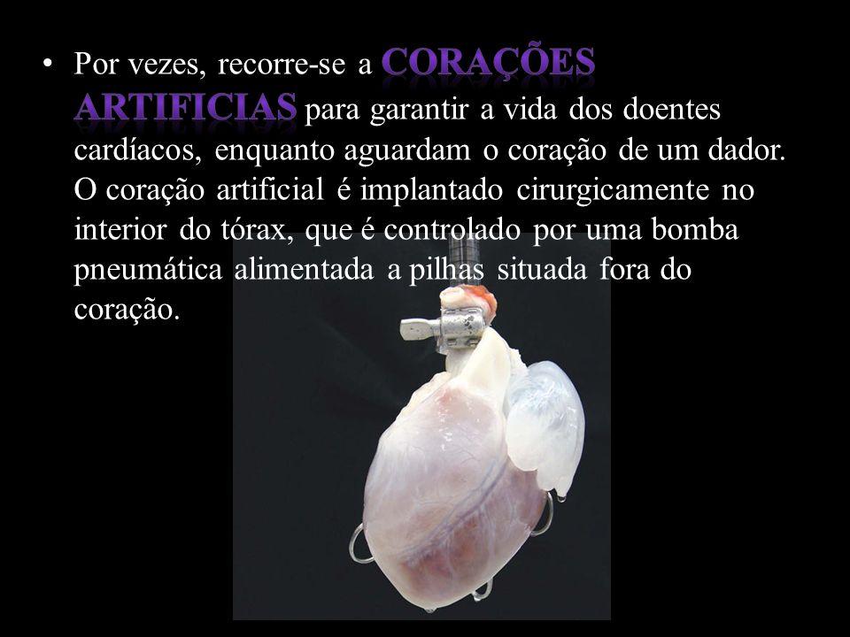 No final deste trabalho, concluímos que a DVC (Doenças cardiovasculares) são a primeira causa de morte nos países desenvolvidos, devido a hábitos de vida pouco saudáveis.