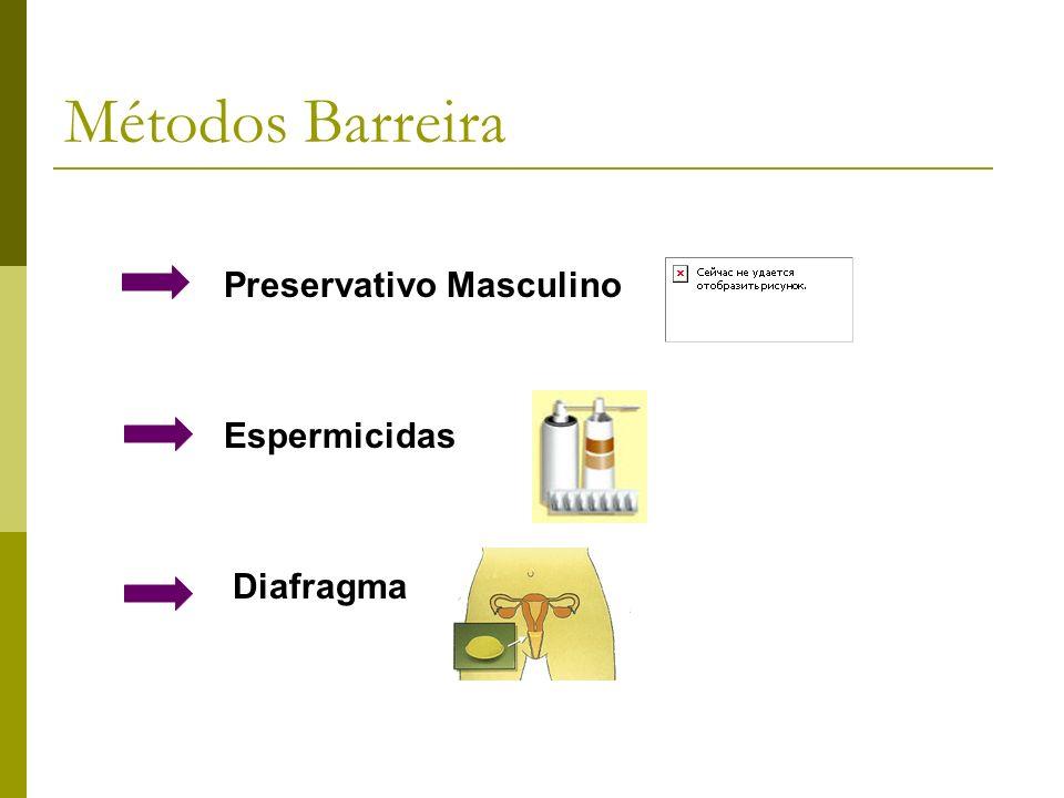 Preservativo Masculino Espermicidas Diafragma Métodos Barreira