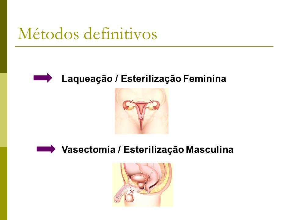 Laqueação / Esterilização Feminina Vasectomia / Esterilização Masculina Métodos definitivos