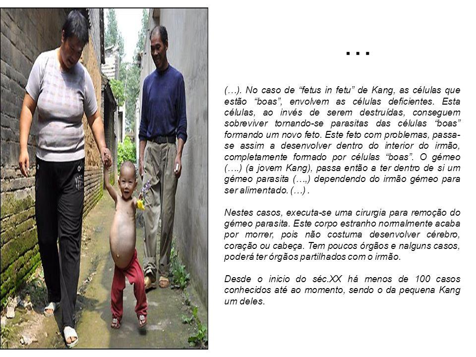 … (…). No caso de fetus in fetu de Kang, as células que estão boas, envolvem as células deficientes. Esta células, ao invés de serem destruídas, conse