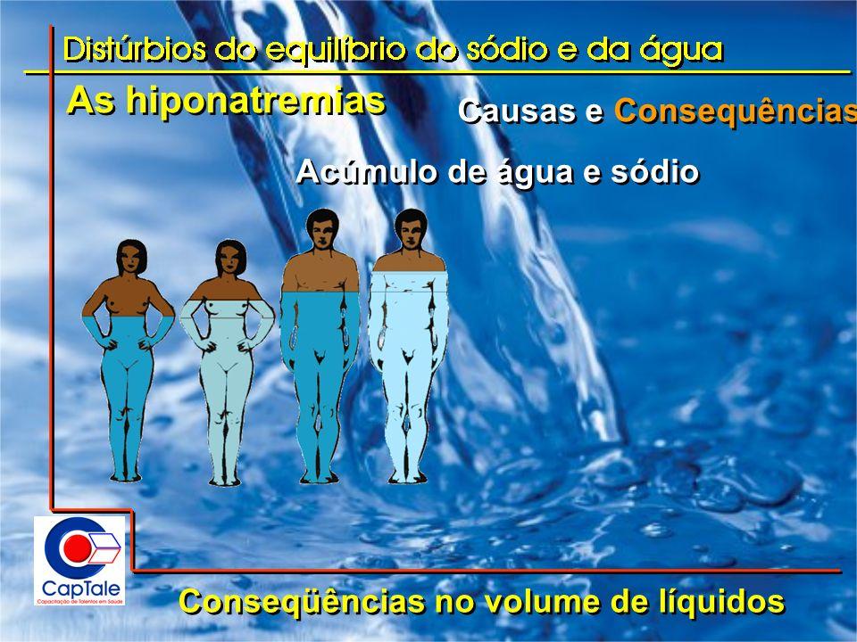 As hiponatremias Causas e Consequências Conseqüências no volume de líquidos Acúmulo de água e sódio