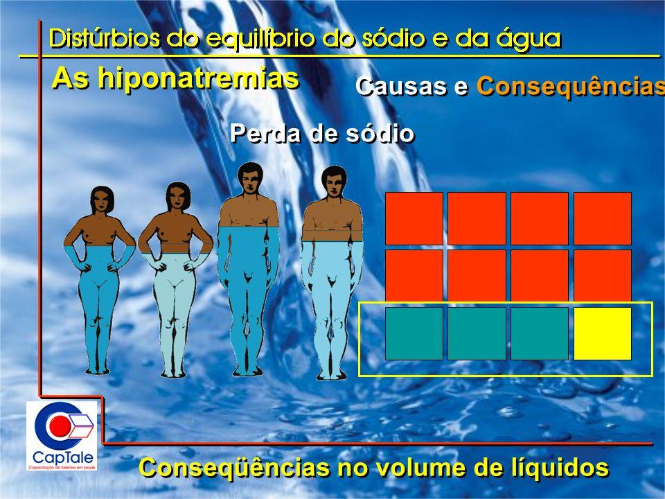 As hiponatremias Causas e Consequências Conseqüências no volume de líquidos Perda de sódio