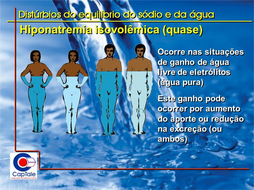 Hiponatremia isovolêmica (quase) Ocorre nas situações de ganho de água livre de eletrólitos (água pura) Este ganho pode ocorrer por aumento do aporte