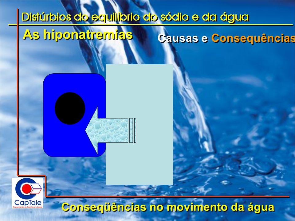 As hiponatremias Causas e Consequências Conseqüências no volume de líquidos Acúmulo de água pura