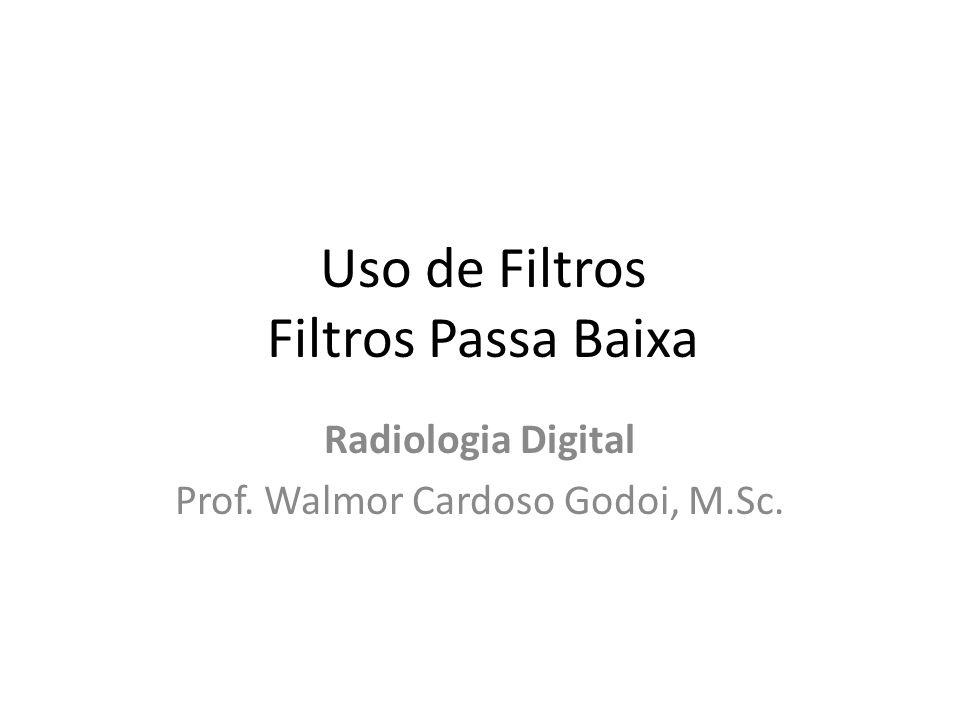 Uso de Filtros Filtros Passa Baixa Radiologia Digital Prof. Walmor Cardoso Godoi, M.Sc.