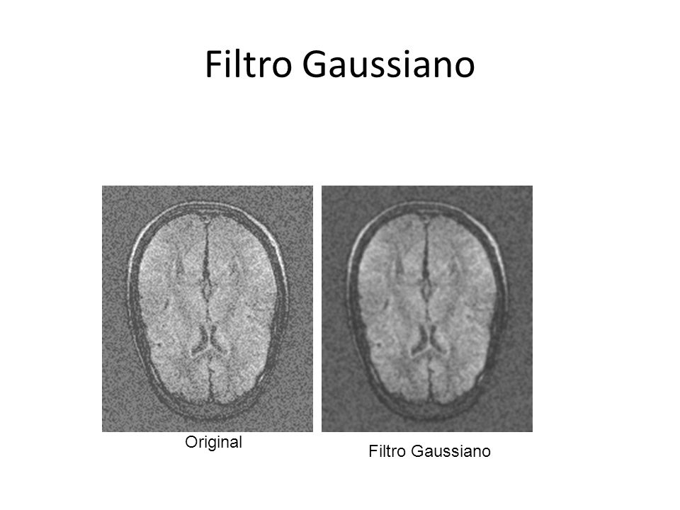 Original Filtro Gaussiano