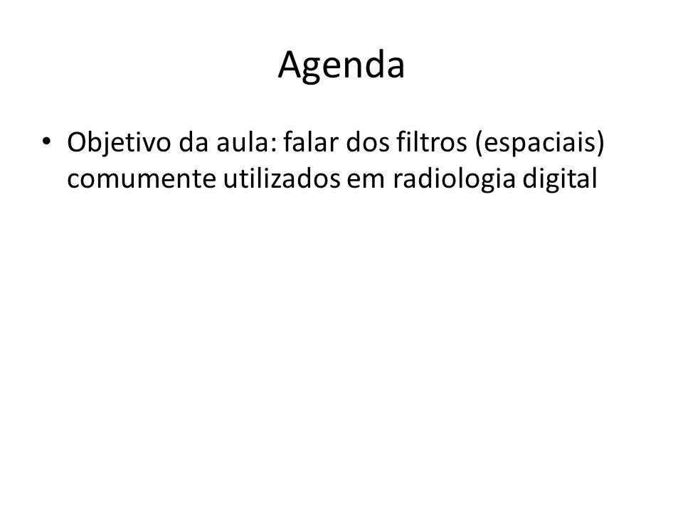 Agenda Objetivo da aula: falar dos filtros (espaciais) comumente utilizados em radiologia digital