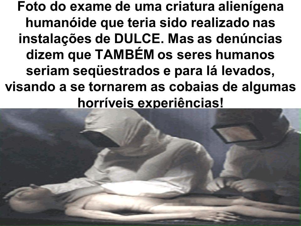 Foto do exame de uma criatura alienígena humanóide que teria sido realizado nas instalações de DULCE. Mas as denúncias dizem que TAMBÉM os seres human