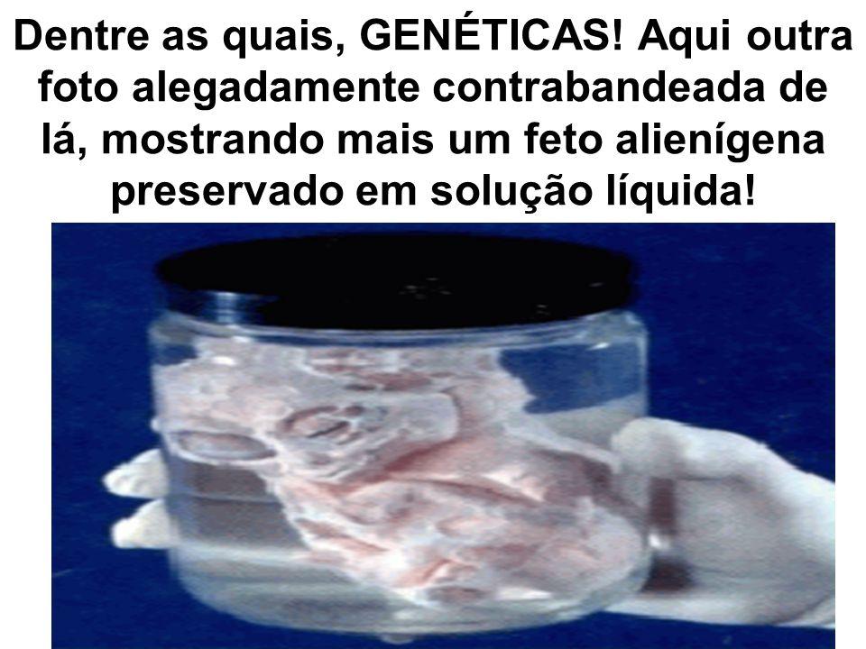 Dentre as quais, GENÉTICAS! Aqui outra foto alegadamente contrabandeada de lá, mostrando mais um feto alienígena preservado em solução líquida!