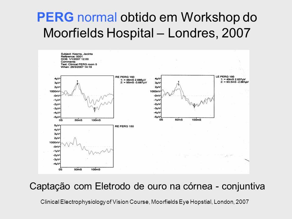PERG normal obtido em Workshop do Moorfields Hospital – Londres, 2007 Captação com Eletrodo de ouro na córnea - conjuntiva Clinical Electrophysiology
