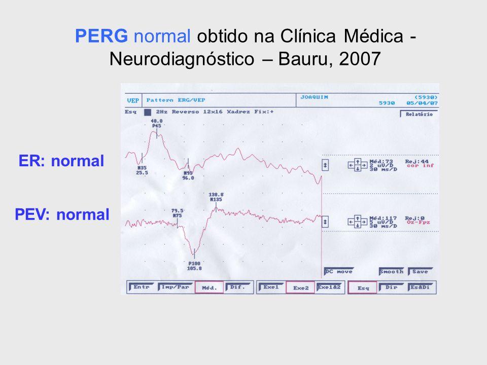 ER: normal PEV: normal PERG normal obtido na Clínica Médica - Neurodiagnóstico – Bauru, 2007