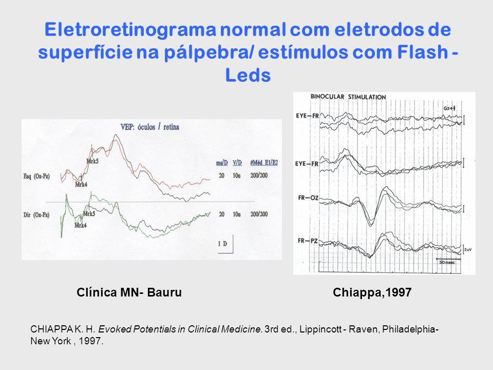 Eletroretinograma normal com eletrodos de superfície na pálpebra/ estímulos com Flash - Leds Chiappa,1997Clínica MN- Bauru CHIAPPA K. H. Evoked Potent