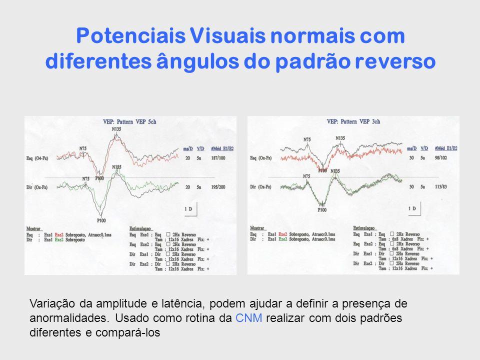 Potenciais Visuais normais com diferentes ângulos do padrão reverso Variação da amplitude e latência, podem ajudar a definir a presença de anormalidad