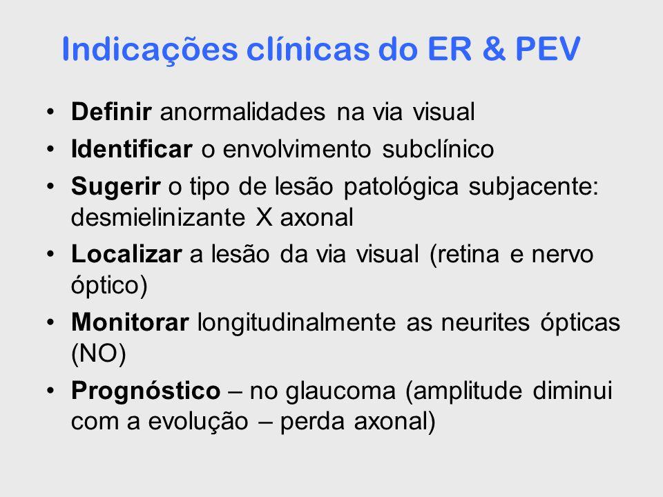 Indicações clínicas do ER & PEV Definir anormalidades na via visual Identificar o envolvimento subclínico Sugerir o tipo de lesão patológica subjacent