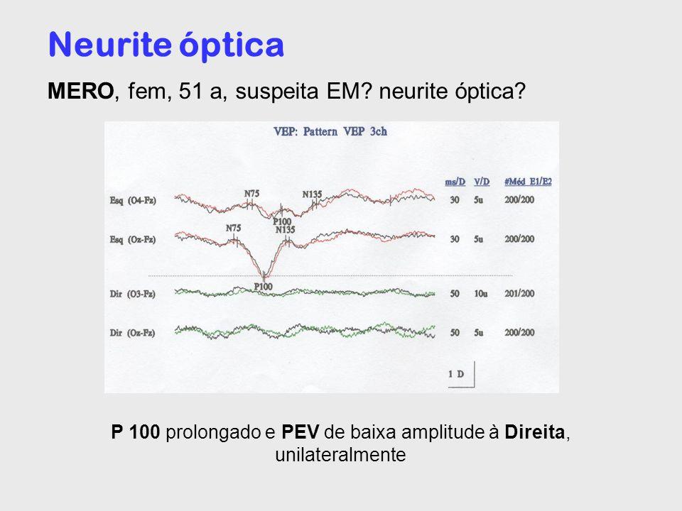 Neurite óptica MERO, fem, 51 a, suspeita EM? neurite óptica? P 100 prolongado e PEV de baixa amplitude à Direita, unilateralmente