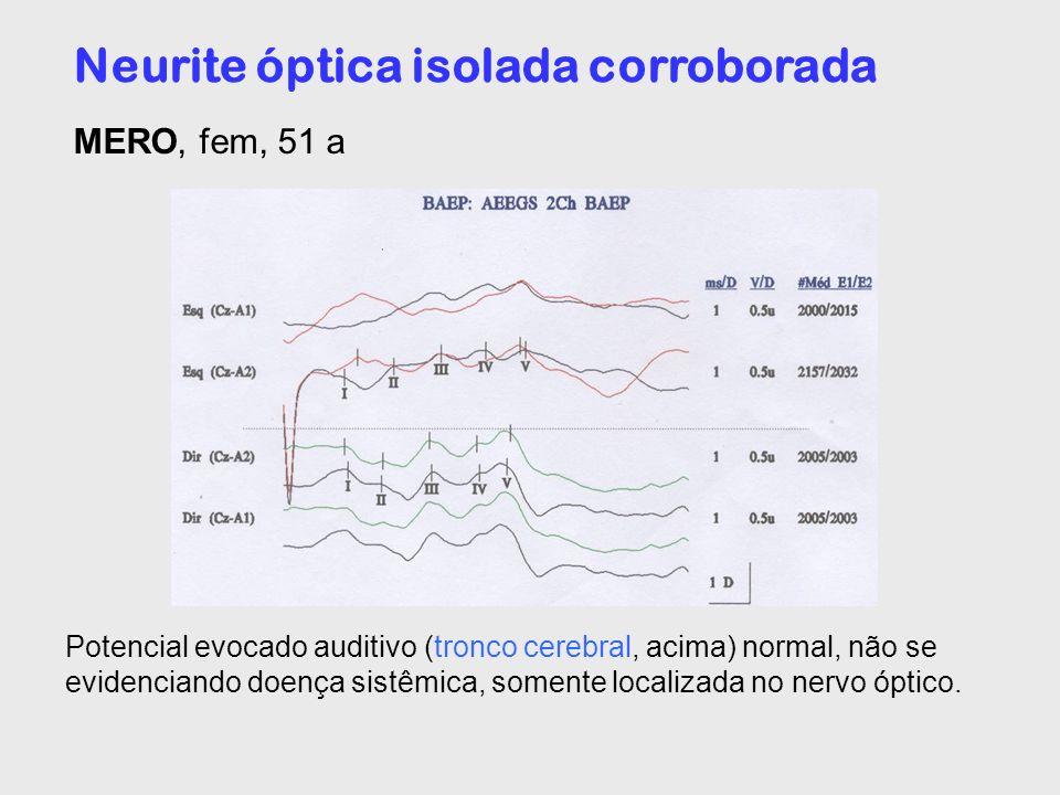 Neurite óptica isolada corroborada MERO, fem, 51 a Potencial evocado auditivo (tronco cerebral, acima) normal, não se evidenciando doença sistêmica, s
