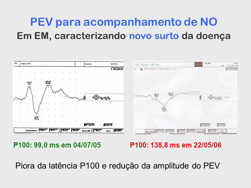 PEV para acompanhamento de NO Em EM, caracterizando novo surto da doença P100: 99,0 ms em 04/07/05P100: 138,8 ms em 22/05/06 Piora da latência P100 e