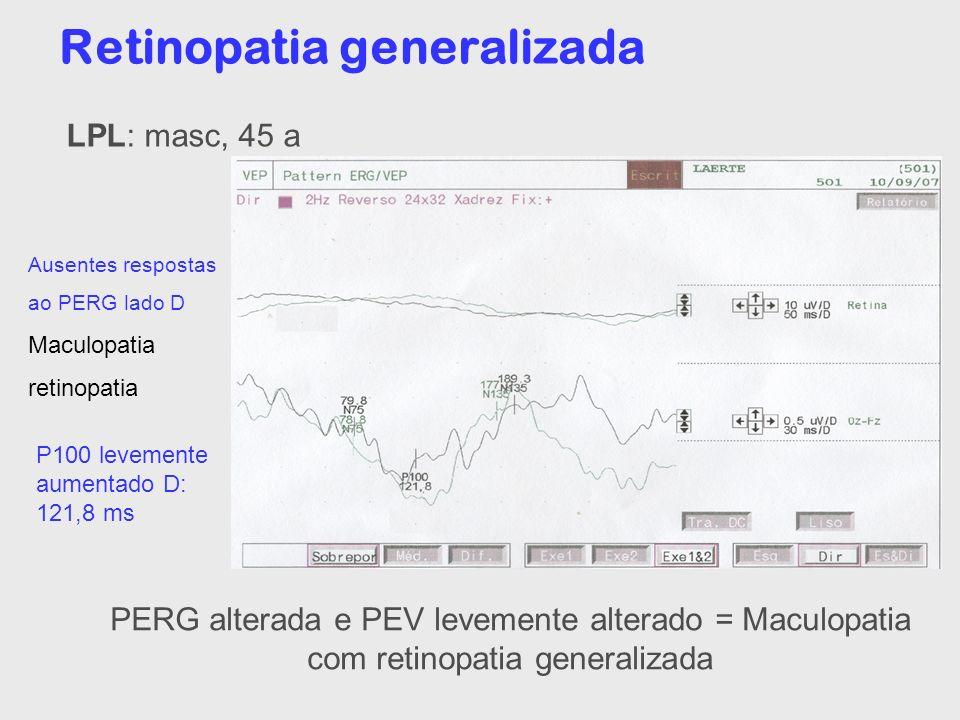 Retinopatia generalizada P100 levemente aumentado D: 121,8 ms Ausentes respostas ao PERG lado D Maculopatia retinopatia PERG alterada e PEV levemente