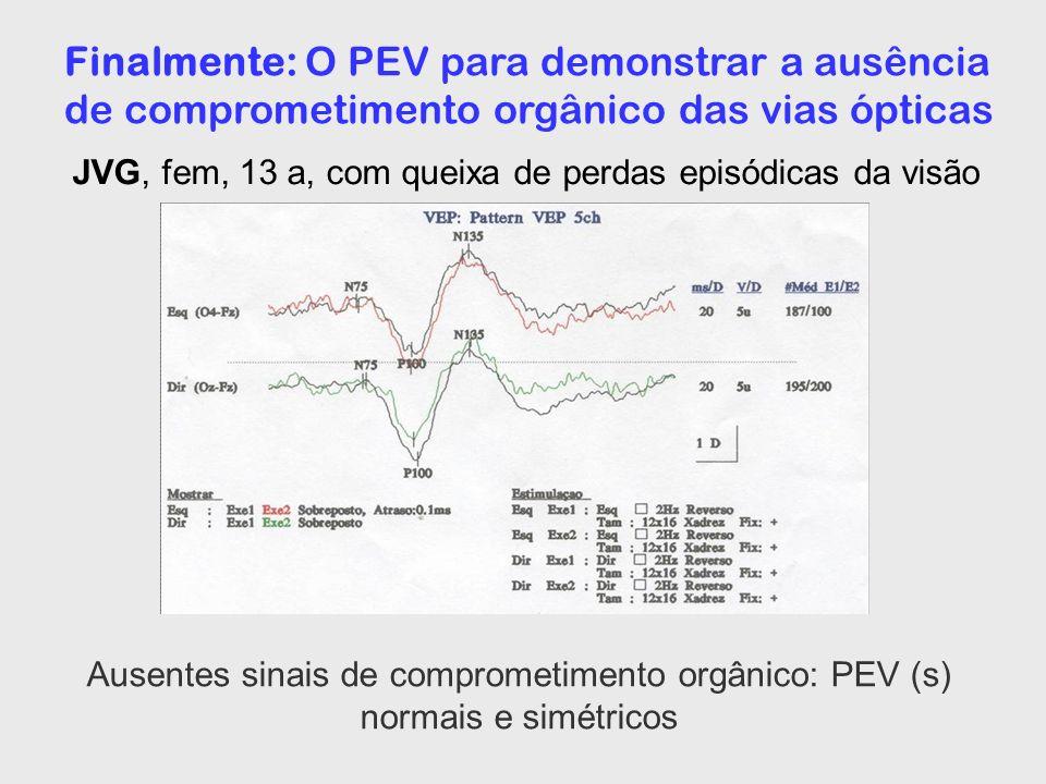 Finalmente: O PEV para demonstrar a ausência de comprometimento orgânico das vias ópticas JVG, fem, 13 a, com queixa de perdas episódicas da visão Aus