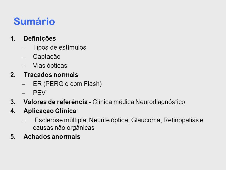Padrão de normalidade da Clínica Neurodiagnóstico n = 26, idade: 38,08 média (20-53), fem: 14 e mas: 11 P100 (padrão reverso xadrez <, ): 94,64 ms DP: 4,78 Limite superior: 108,98 (3 DP) P100 (padrão reverso xadrez >): 96,09 ms DP: 5,22 Limite superior: 111,72 (3 DP) e Variação (88,5 a 114,8 ms) nota: realizado em um só olho, com distância e luminosidades da sala e do monitor mantidas, conforme normas da Sociedade Brasileira de Neurofisiologia Clínica (SBNC)