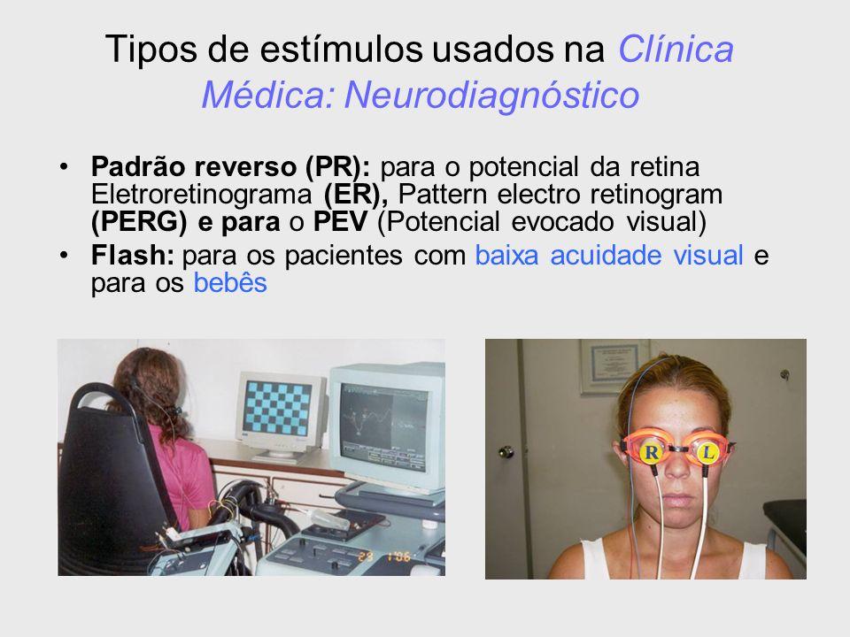Tipos de estímulos usados na Clínica Médica: Neurodiagnóstico Padrão reverso (PR): para o potencial da retina Eletroretinograma (ER), Pattern electro