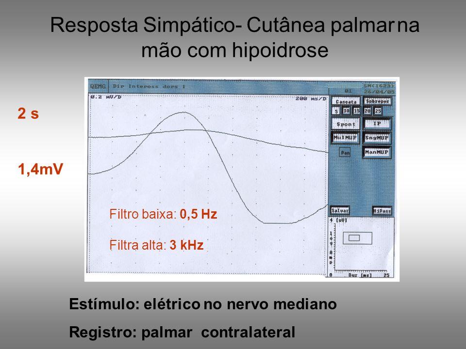 Resposta Simpático- Cutânea palmar na mão com hipoidrose Estímulo: elétrico no nervo mediano Registro: palmar contralateral 2 s 1,4mV Filtro baixa: 0,
