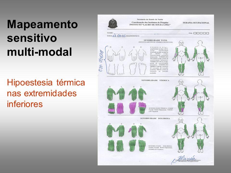 Mapeamento sensitivo multi-modal Hipoestesia térmica nas extremidades inferiores