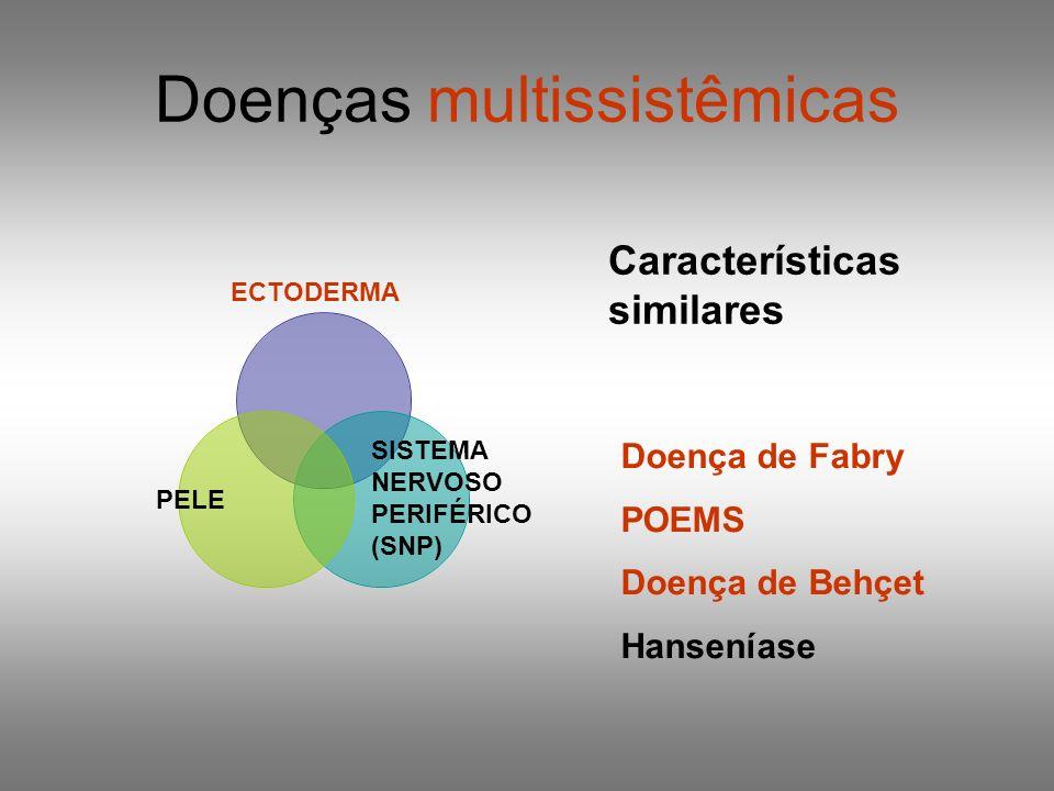 Doenças multissistêmicas ECTODERMA PELE SISTEMA NERVOSO PERIFÉRICO (SNP) Características similares Doença de Fabry POEMS Doença de Behçet Hanseníase