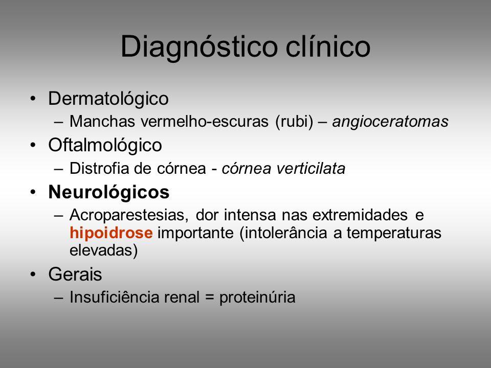 Diagnóstico clínico Dermatológico –Manchas vermelho-escuras (rubi) – angioceratomas Oftalmológico –Distrofia de córnea - córnea verticilata Neurológic
