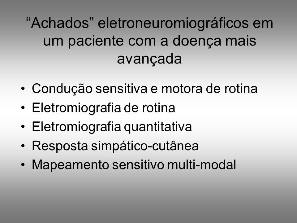 Achados eletroneuromiográficos em um paciente com a doença mais avançada Condução sensitiva e motora de rotina Eletromiografia de rotina Eletromiograf