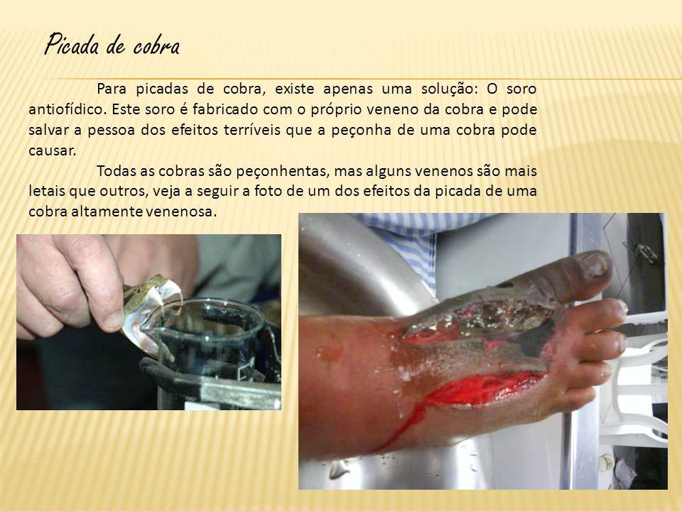 Picada de cobra Para picadas de cobra, existe apenas uma solução: O soro antiofídico. Este soro é fabricado com o próprio veneno da cobra e pode salva