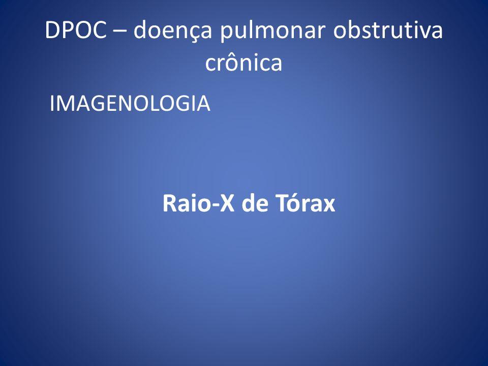 IMAGENOLOGIA Raio-X de Tórax