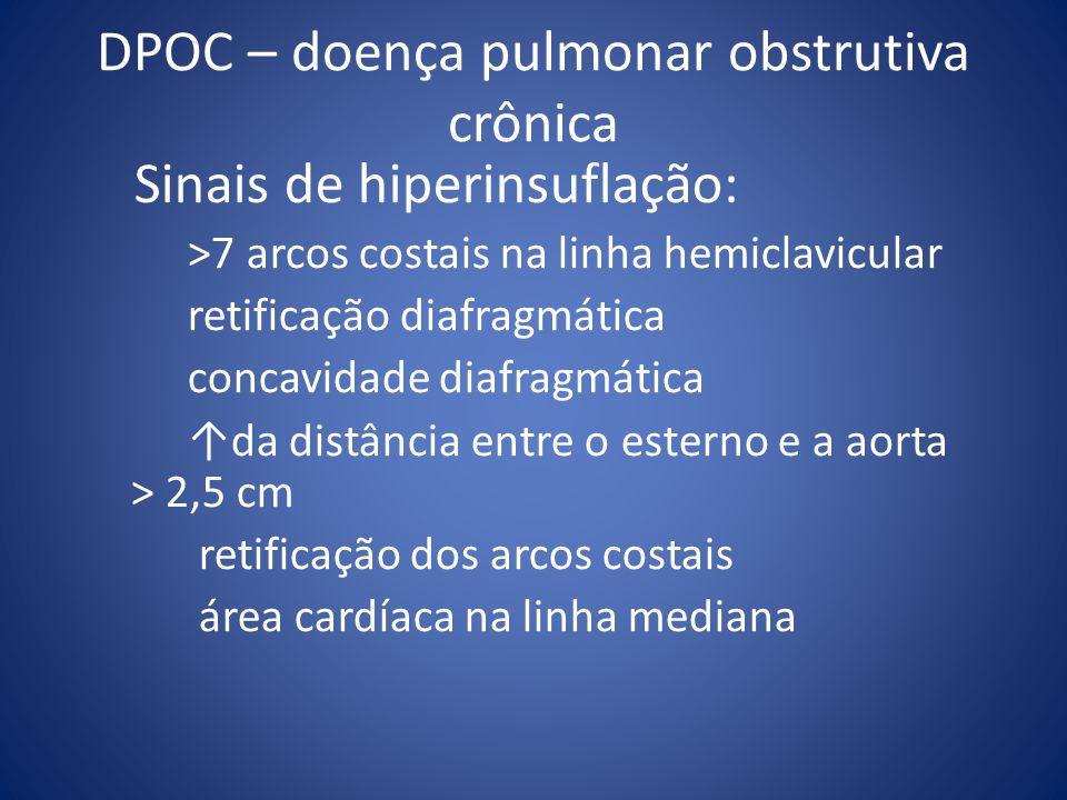 DPOC – doença pulmonar obstrutiva crônica Sinais de hiperinsuflação: >7 arcos costais na linha hemiclavicular retificação diafragmática concavidade di