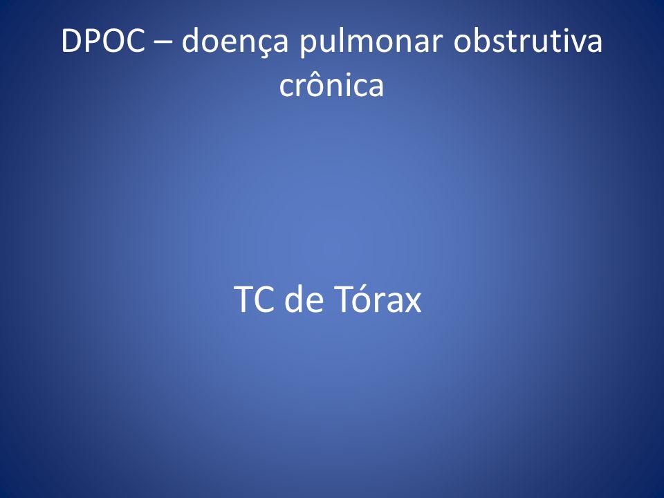 DPOC – doença pulmonar obstrutiva crônica TC de Tórax