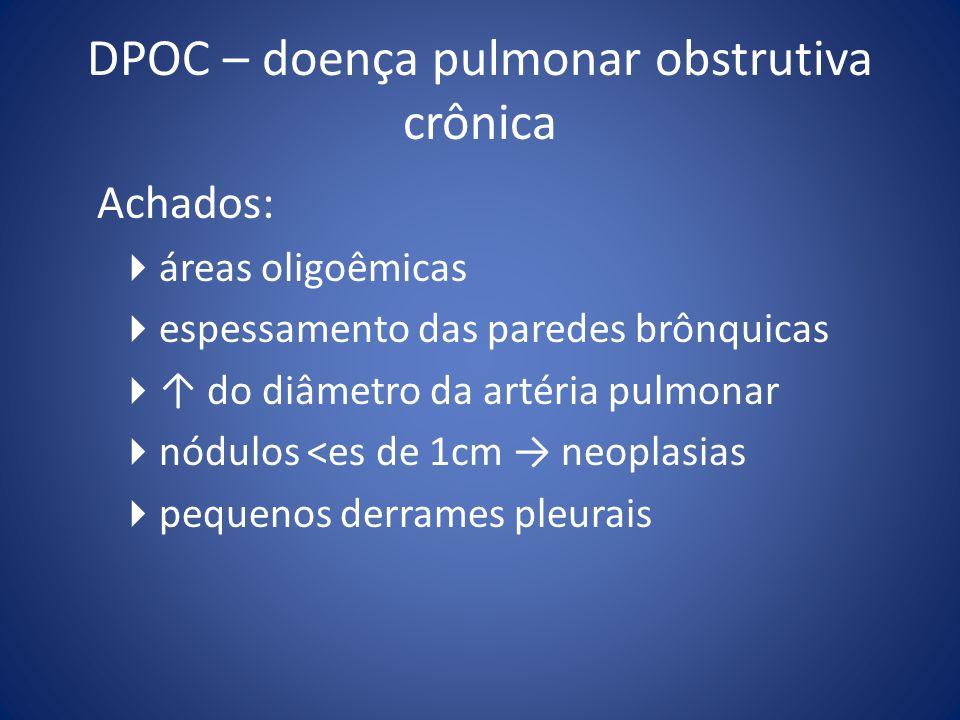 DPOC – doença pulmonar obstrutiva crônica Achados: áreas oligoêmicas espessamento das paredes brônquicas do diâmetro da artéria pulmonar nódulos <es d