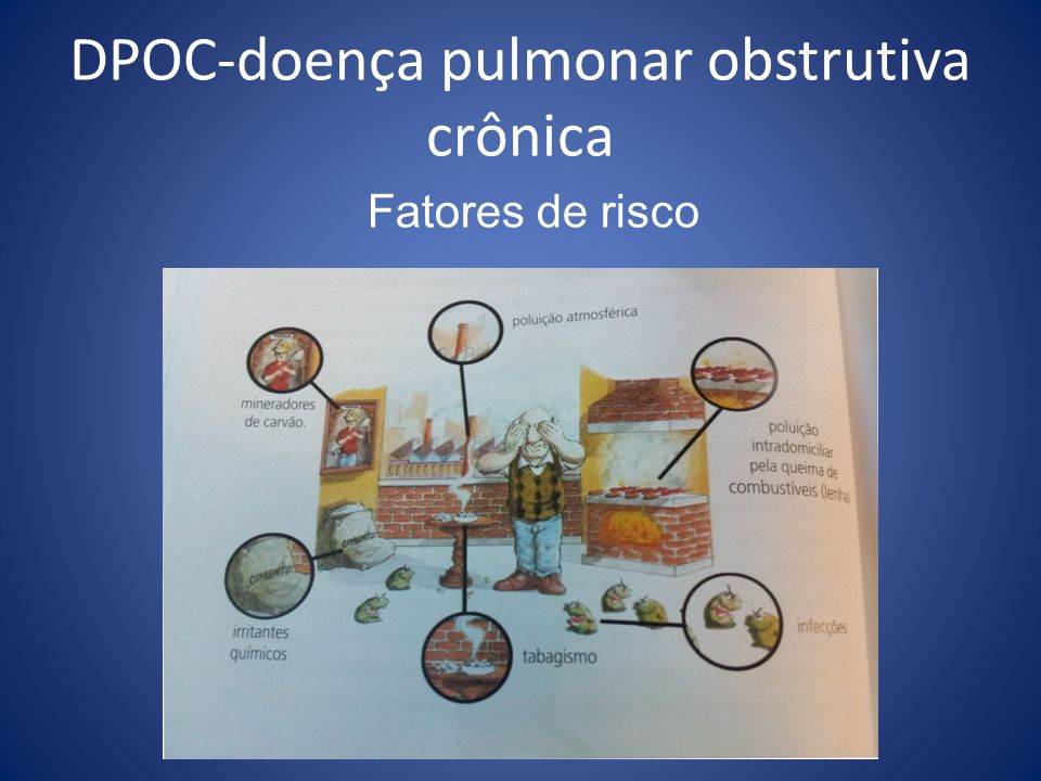 DPOC-doença pulmonar obstrutiva crônica Fatores de risco