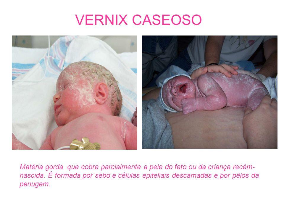 VERNIX CASEOSO Matéria gorda que cobre parcialmente a pele do feto ou da criança recém- nascida. É formada por sebo e células epiteliais descamadas e